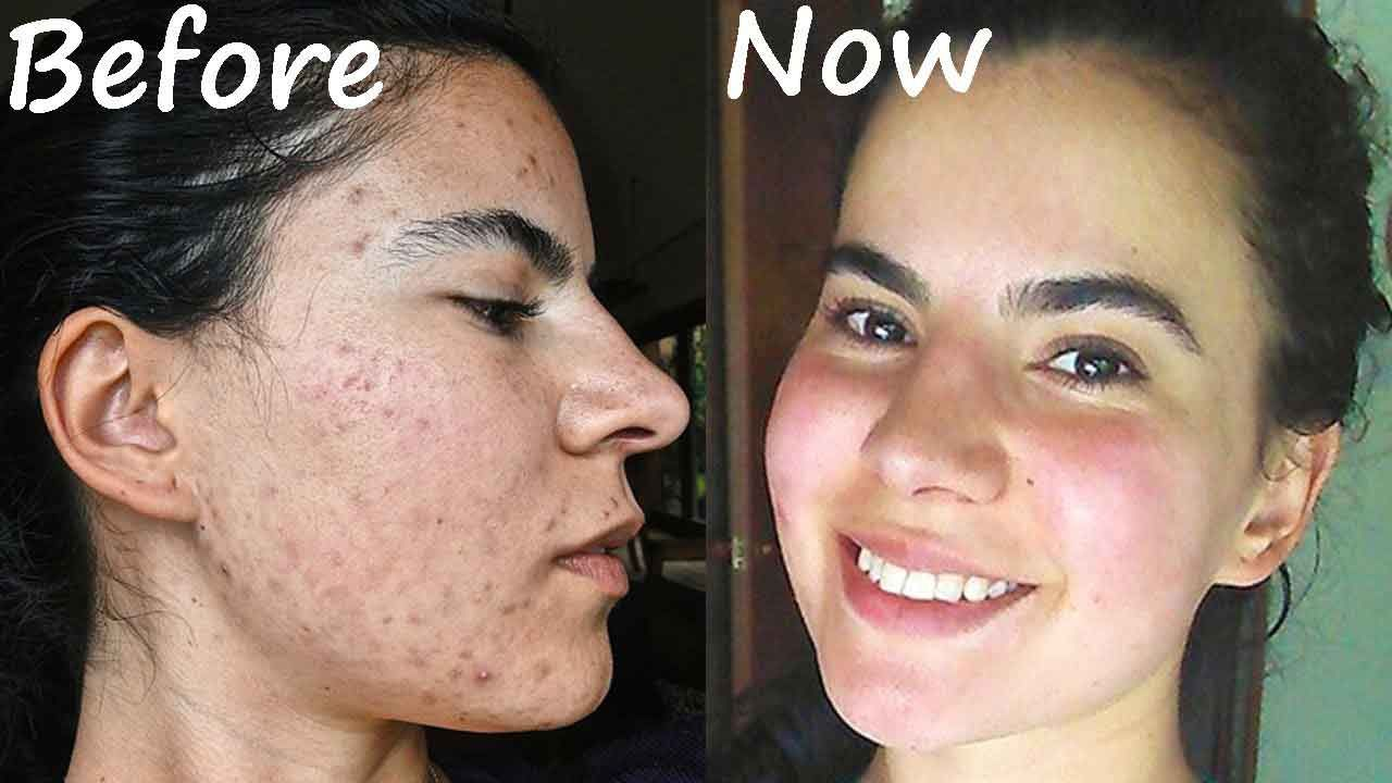 paleo diet acne before and after