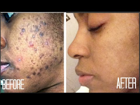 d3a5dbe176180a39d7b6d04e42bc84bd - How To Get Rid Of Acne Scars And Hyperpigmentation Naturally