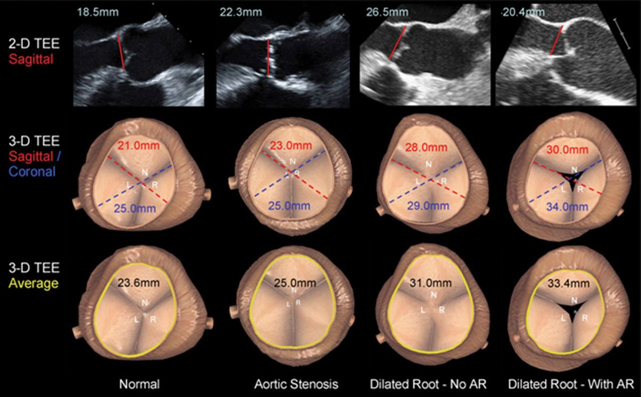transesophageal valve aortic mitral leaflet」の画像検索結果 | 心臓 ...