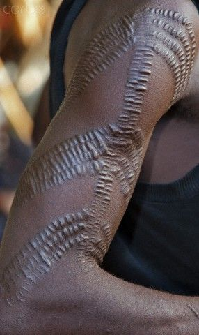 Africa A Pokot Man With Scarification On His Right Arm This