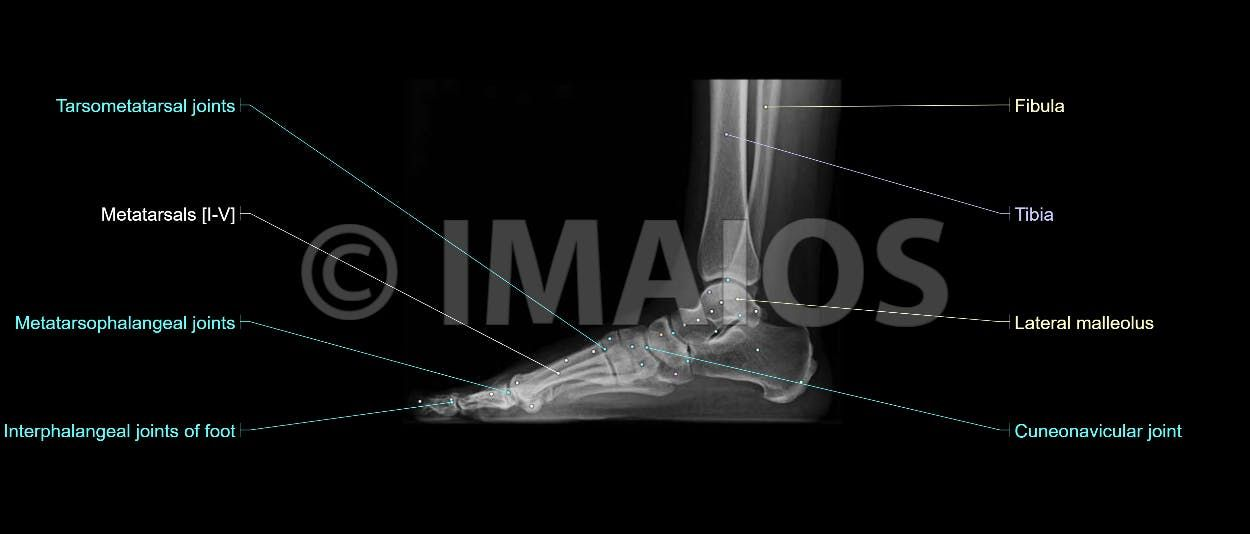 Lateral view of the foot on radiography (X-ray) : metatarsals ...