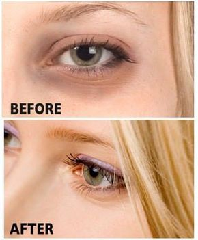 Dark discoloration of the skin under the eye is mainly ...