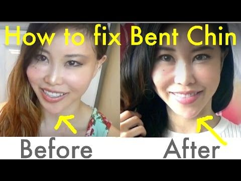 chopstick exercise for symmetrical face  how to fix