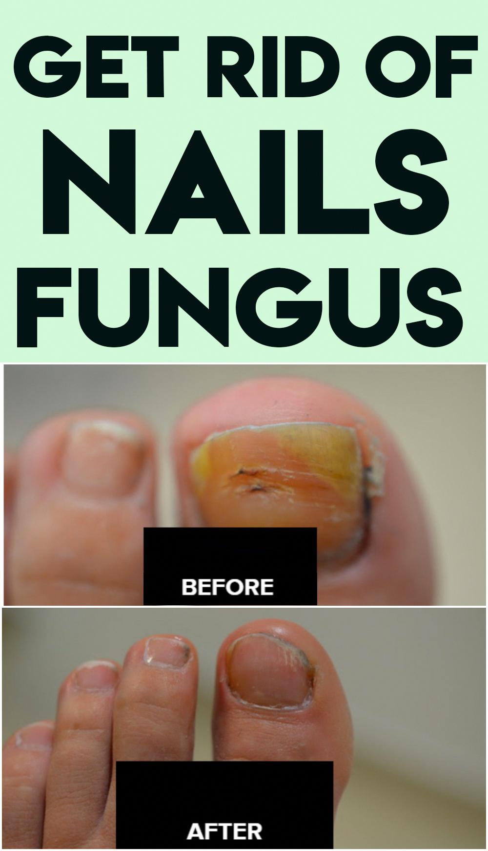 16 Motivation Nail Fungus Tea Tree Natural Plans In 2020 Nail Fungus Brittle Nails Treatment Fungi