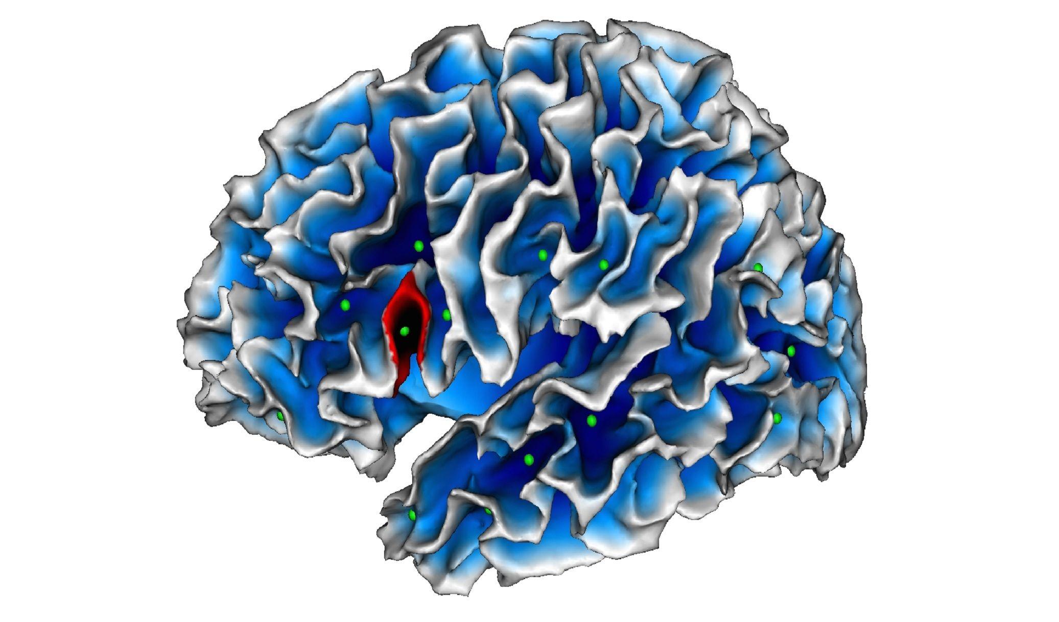Encuentran un marcador cerebral del #autismo presente desde los dos años