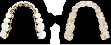Lingual Braces Invisible Dental Braces Incognito Hidden Braces Hidden Braces Incognito Braces Dental Braces