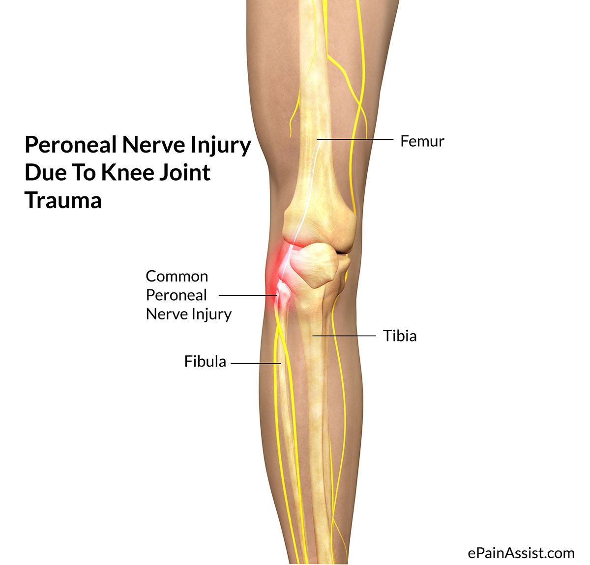 Peroneal Nerve Injury - Treatment, Causes, Symptoms | Pinterest