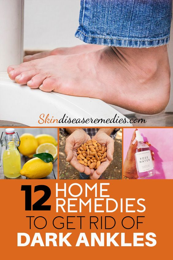 how to get rid of dry skin on ankles