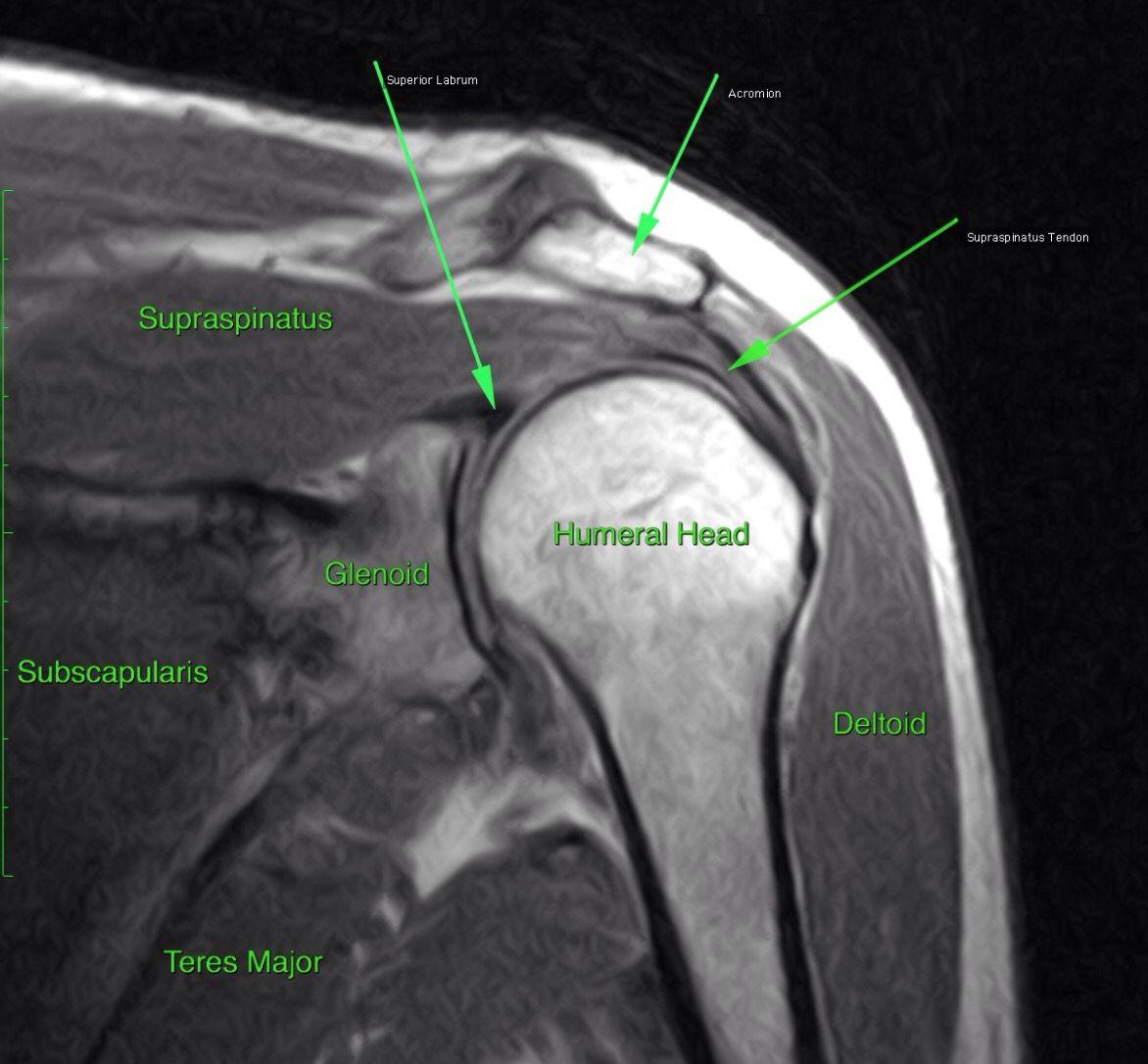 MRI AP shoulder. Unidad Especializada en Ortopedia y Traumatologia ...