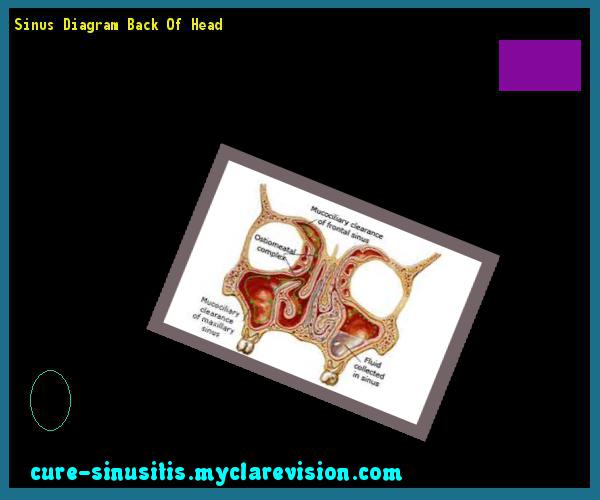 Sinus Diagram Back Of Head 110246 Cure Sinusitis 17291903