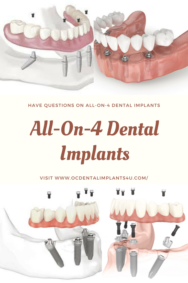 All On 4 Dental Implants Top Frequently Asked Questions Dental Implants Dental Dental Implants Cost