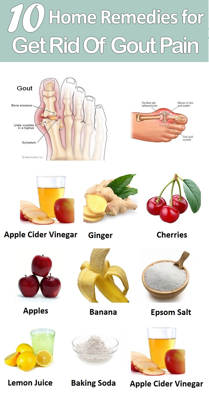Gout Treatment at Home 67