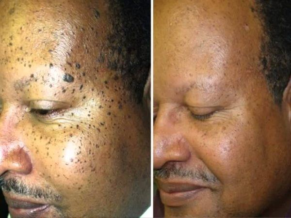 Hpv skin moles.
