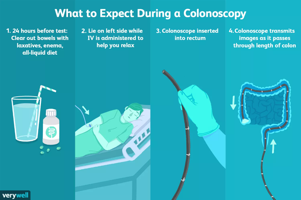 Uses Procedure And Results Of A Colonoscopy Learning About Health And Health Conditions Surgery Colon Cancer Cancer