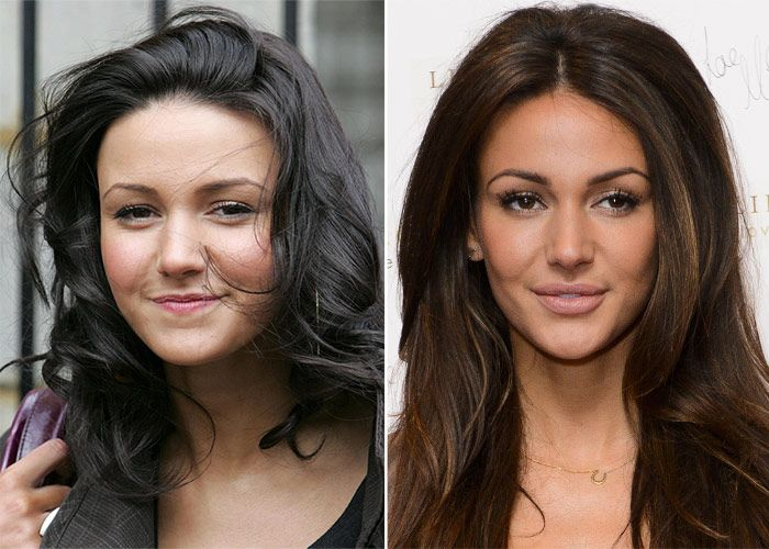 Michelle Keegan addresses plastic surgery rumours | Lips