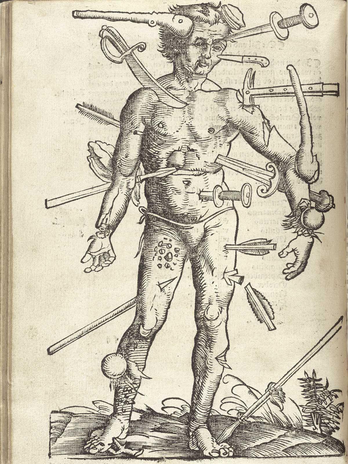 Wound Man, c.1400s | Retronaut