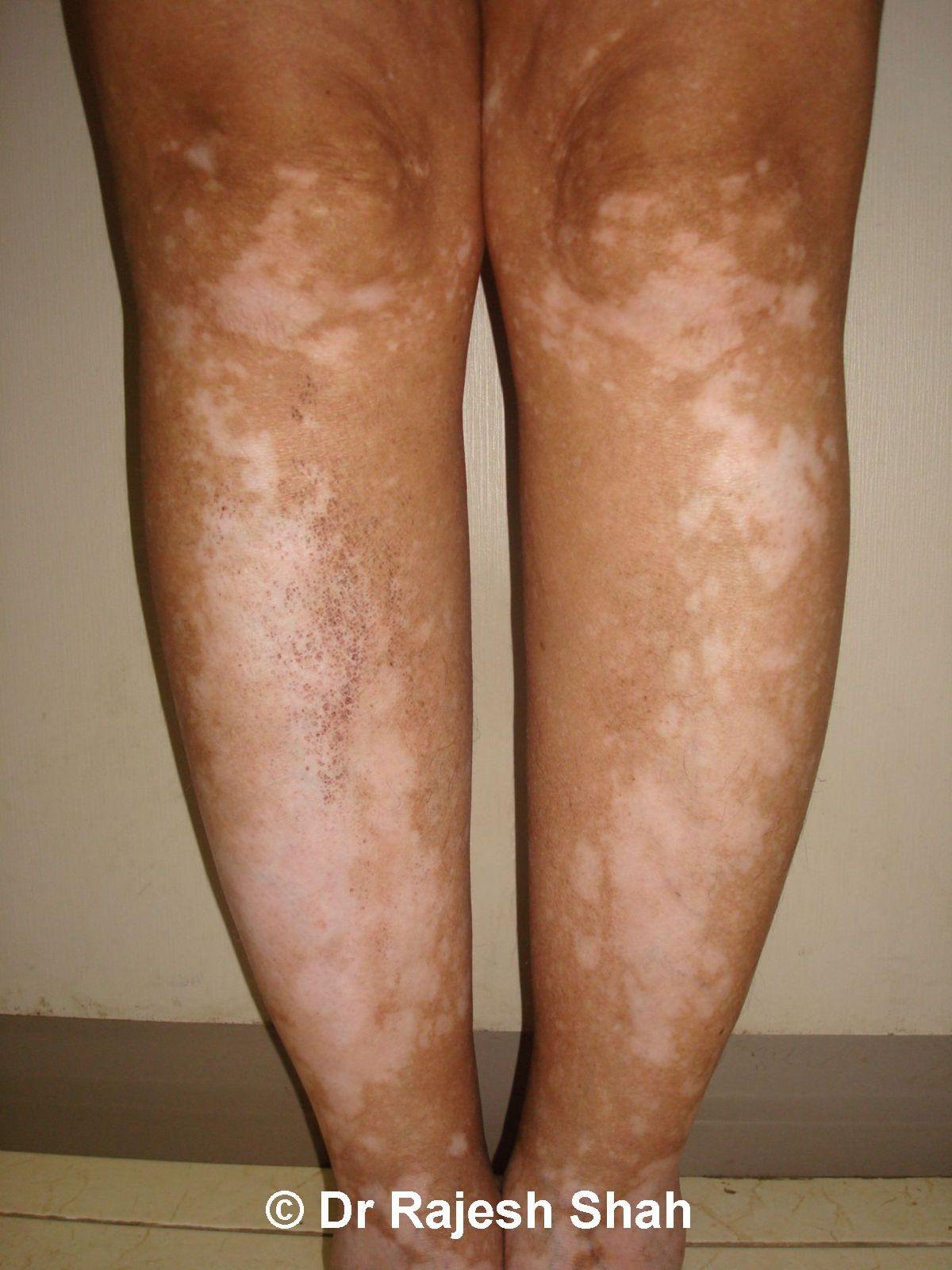 Pin On Natural Vitiligo Treatment