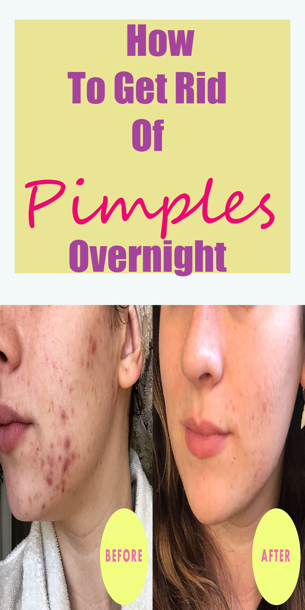 How To Get Rid Of Pimples Instantly How To Get Rid Of Pimples Overnight In 2020 How To Get Rid Of Pimples Pimples Overnight Pimples