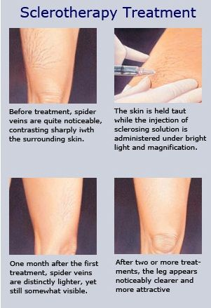 Spider Varicose Vein Treatments Spider Vein Injections