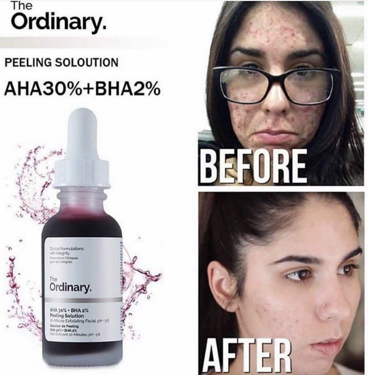 The Ordinary AHA 30 BHA 2 Peeling Solution in 2020