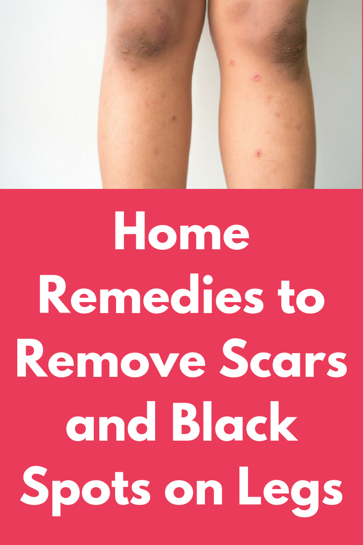 How To Get Rid Of Wound Scars On Legs