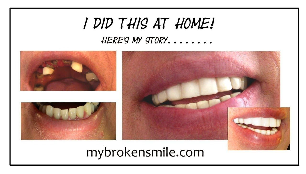 Fix a missing or broken tooth at home remedy broken