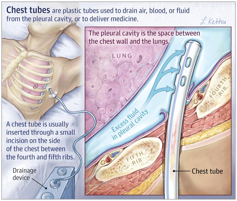 24+ Chest Tubes