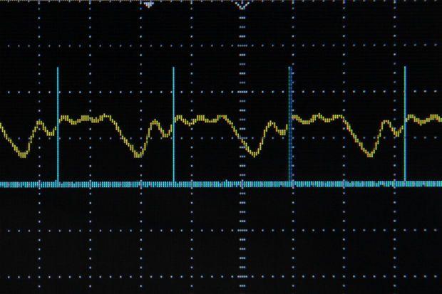 Arduino Frequency Detection | Basil's Garage | Arduino