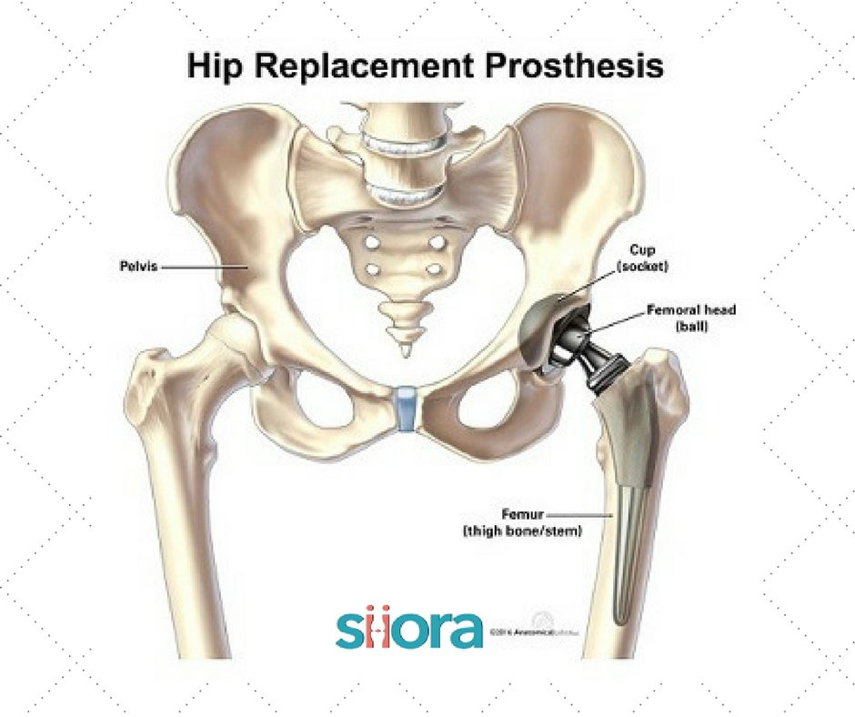 Hip #prosthesis | #orthopedic #implants | superior quality for total ...