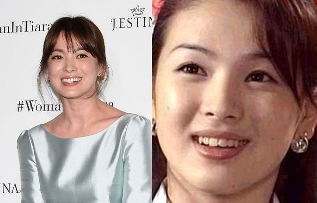 korean celebrity teeth before and after think korea