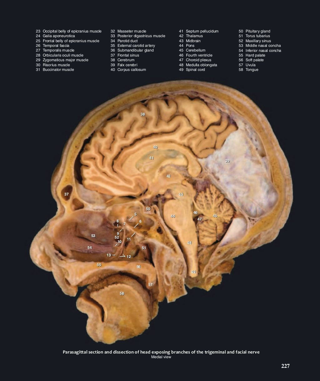 Atlas of human anatomy mark nielsen | Cranial Nerves | Pinterest ...