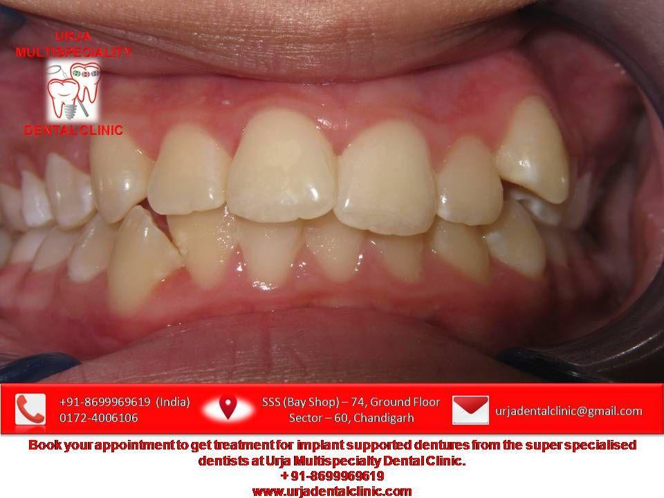 Dentures Near Me >> Implantsupporteddentures Dentureimplants Permanentdentures