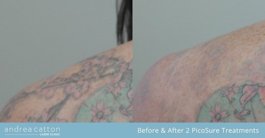 Shoulder Tattoo Before And After Two Picosure Laser Treatments Tattooremoval Tattoos Inked Tatt Tattoo Removal Cost Picosure Tattoo Removal Tattoo Removal