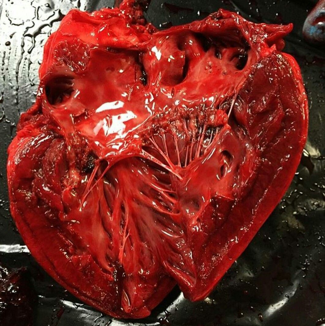 Dissected Heart It S Complexity And Beauty By