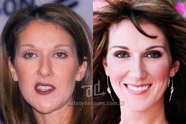 D8mart Com The New Smile Of Celine Dion Afterdental Surgery Celebrity Teeth Celine Dion Plastic Surgery