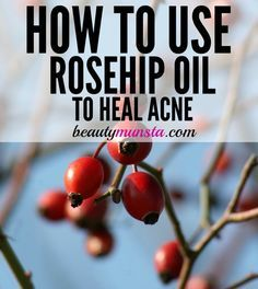 Find out how the benefits of rosehip oil for acne, its properties and 3 DIY recipes in this post!