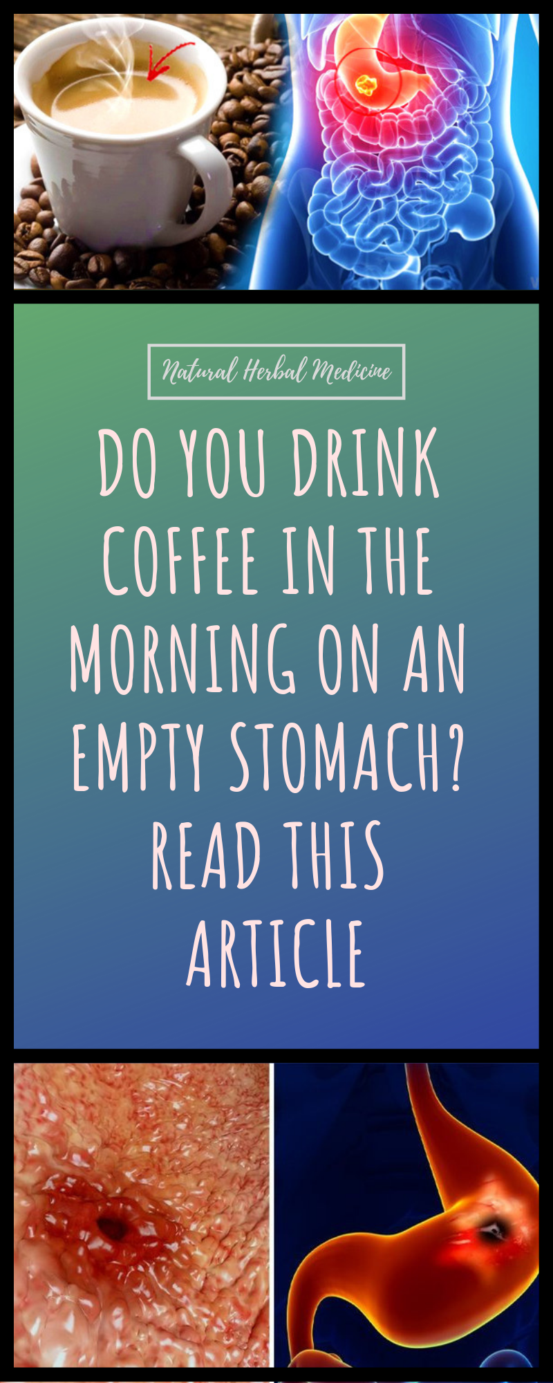 Do You Drink Coffee In The Morning On An Empty Stomach Read This Article Coffee Health Coffee Effects Coffee Health Benefits
