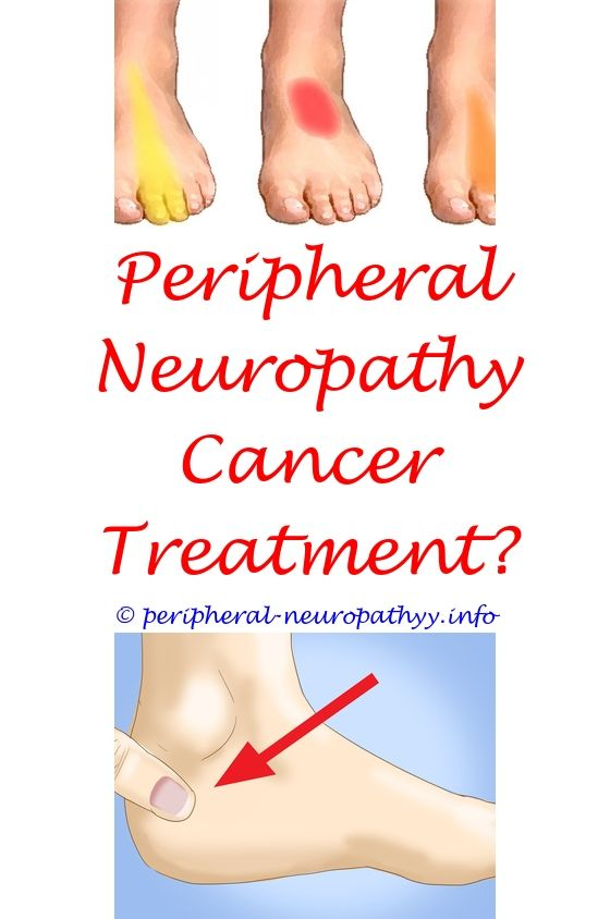 Anterior Ischemic Optic Neuropathy Icd 10 | Peripheral neuropathy, Diabetic  neuropathy and Neuropathy treatment
