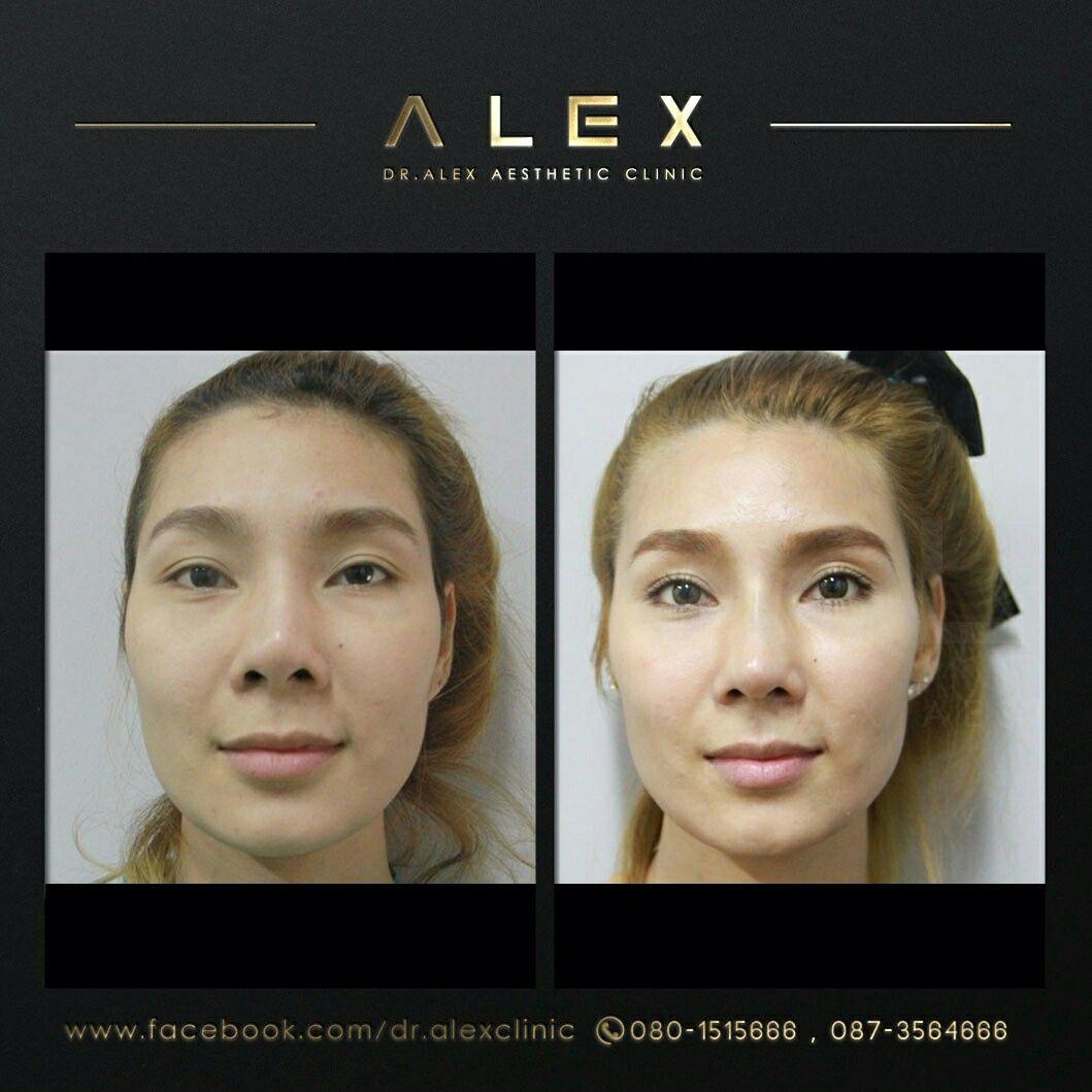 ปักพินโดย Dr. Alex Aesthetic Clinic ใน Thailand Plastic