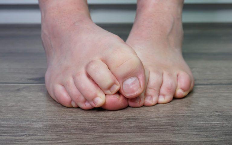 Zeh entzündet? Das kannst du tun!   Fusspflegeblog   Zehen