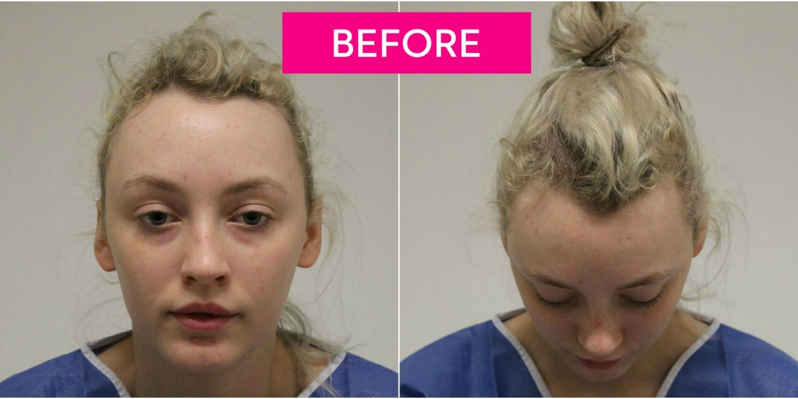 This Ballerina Lost Her Hair After Wearing It In A Bun Every Day Reverse Hair Loss Help Hair Loss Hair Transplant