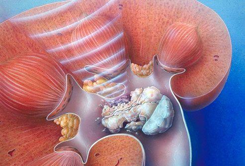 Resultado de imagen para Eliminates Stones in the Kidney