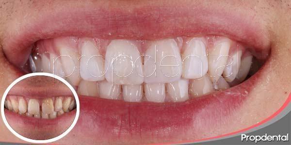 Carillas De Porcelana Precio Carillas De Porcelana En Propdental Carillas De Porcelana Porcelana Diseños De Sonrisa