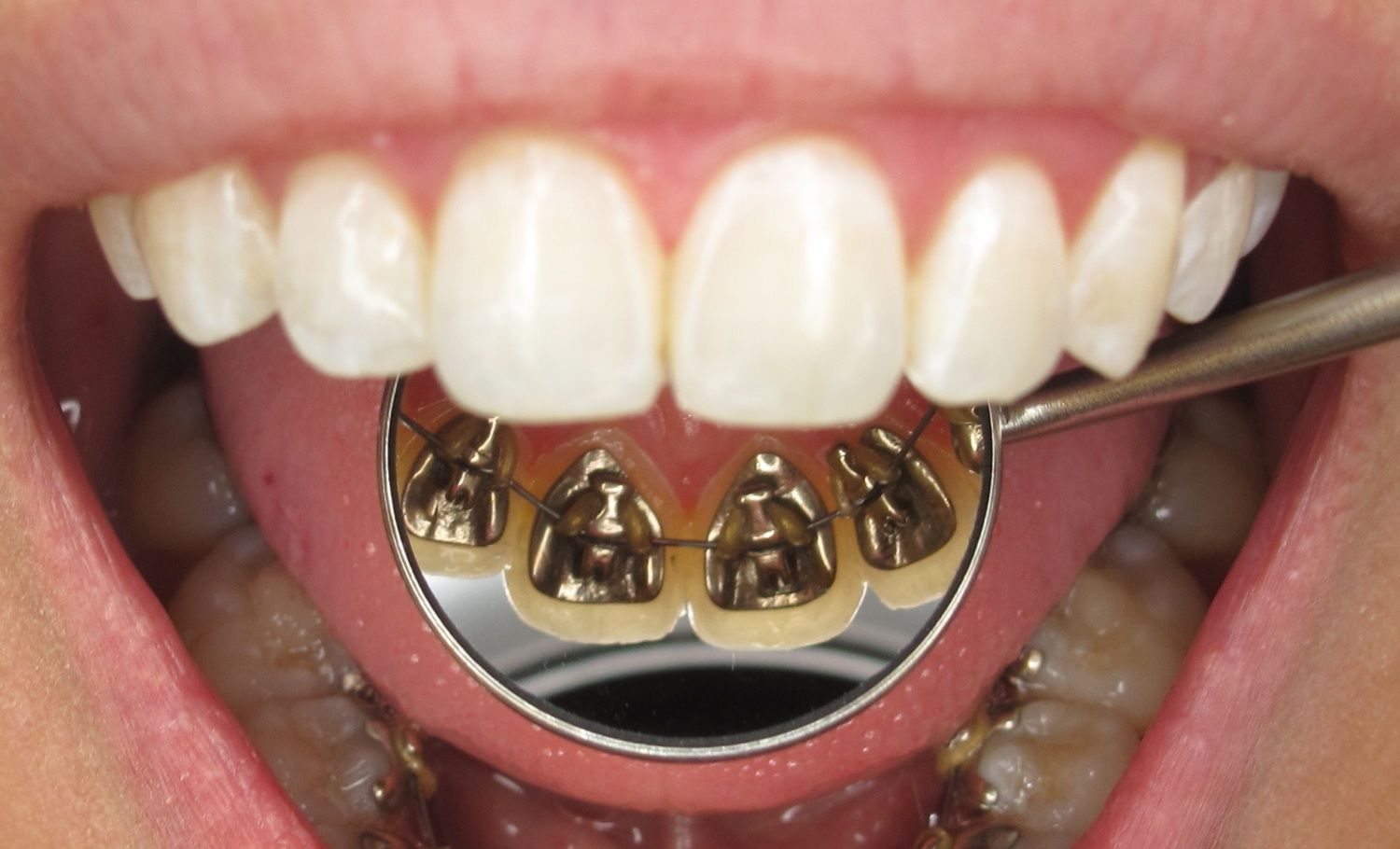 Lingual Braces And Cost Of Lingual Braces Ortodonti Braket Dis