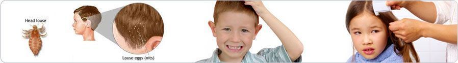 NO ONE WANTS TO KNOW THIS BUT YOU MAY WANT THIS INFO AS IT IS BACK TO SCHOOL TIME...SORRY!   Head Lice Treatment For Kids | Head Lice Treatment World #headlicetreatment NO ONE WANTS TO KNOW THIS BUT YOU MAY WANT THIS INFO AS IT IS BACK TO SCHOOL TIME...SORRY!   Head Lice Treatment For Kids | Head Lice Treatment World #headlicetreatment NO ONE WANTS TO KNOW THIS BUT YOU MAY WANT THIS INFO AS IT IS BACK TO SCHOOL TIME...SORRY!   Head Lice Treatment For Kids | Head Lice Treatment World #headlicetre #headlicetreatment