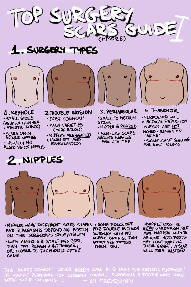 How Much Does It Cost To Get Top Surgery