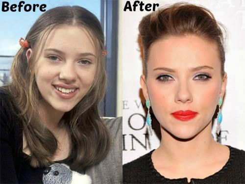 Scarlett Johansson Plastic Surgery Before And After Photo Nose