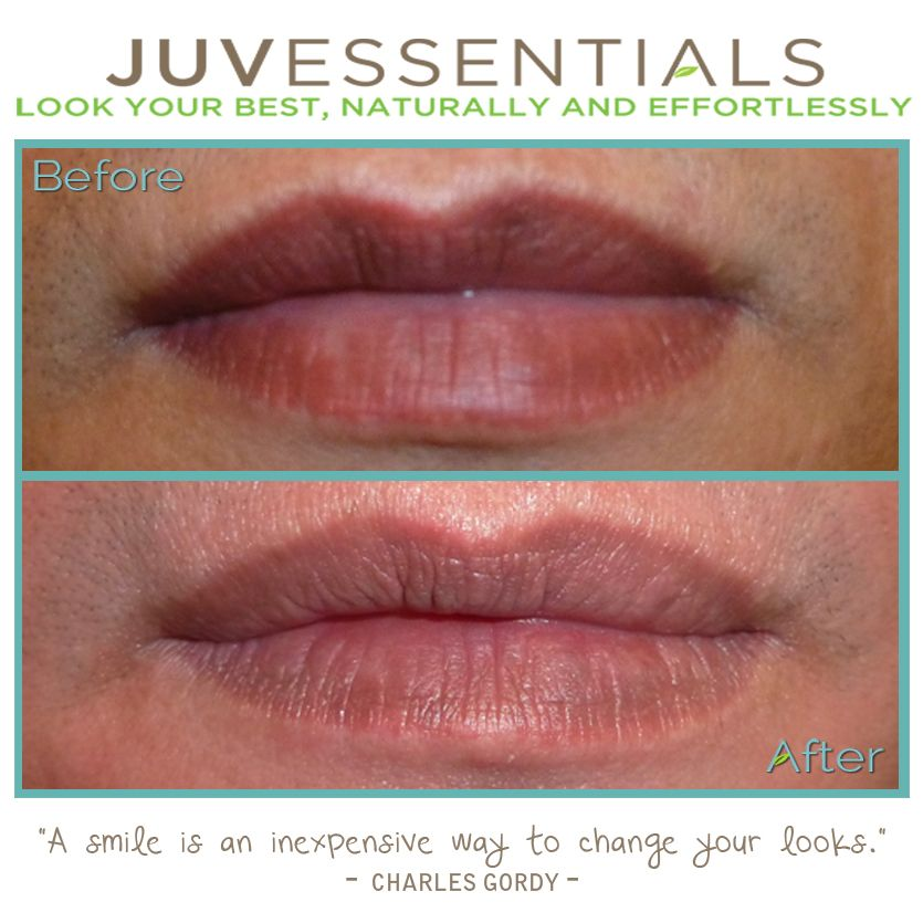 If you are unhappy with a lip tattoo procedure you