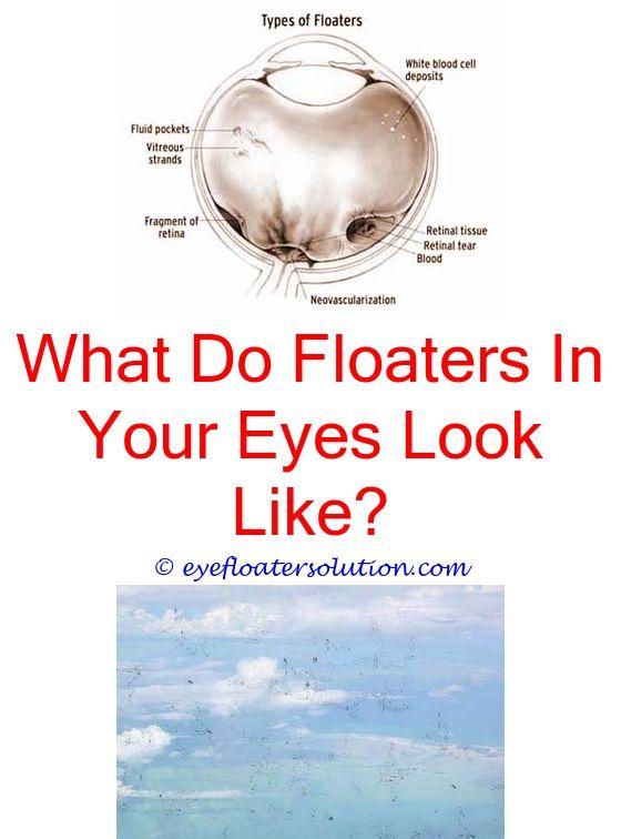 Eye Floaters Laser Treatment Cost Uk | Makeupgenk com