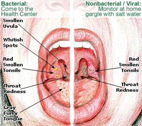 The tonsils are part of your body\'s system to fight infections ...